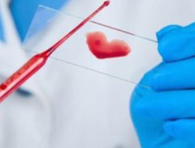 Если случился секс при лечении инфекции передающиеся половым путем