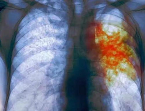 Осторожно туберкулез!