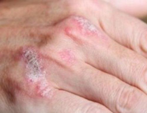 Псориаз, или чешуйчатый лишай представляет собой хроническое многофакторное системное заболевание