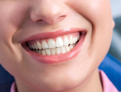 Как сохранить улыбку