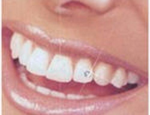 16 июля 2019 проводится Акция по профилактике стоматологических заболеваний