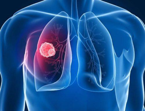 Всемирный день борьбы с туберкулезом. Что такое туберкулез?